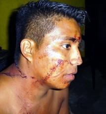 Grave herida en el rostro le causó el asaltante