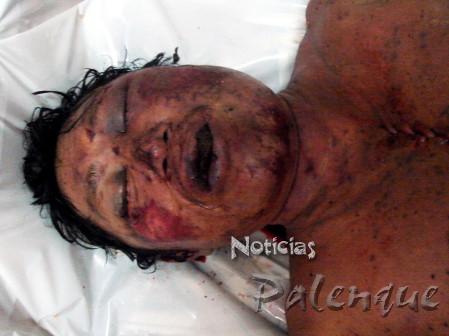 El cuerpo del campesino registró golpes contusos en la cara.