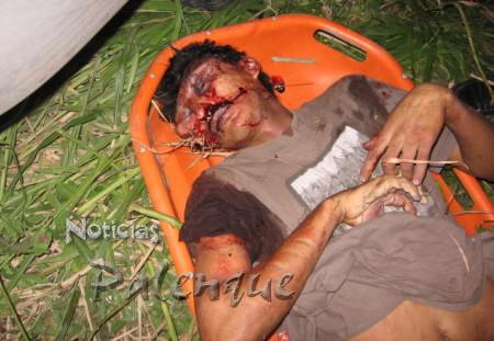 Jorge Alberto Alonso Reyes recibió un balazo en la cara.