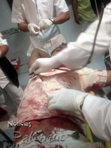 Fueron atendidos de emergencia en el hospital.