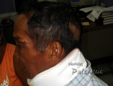 Con sutura en la cabeza y collarin acudió a denunciar al yerno.