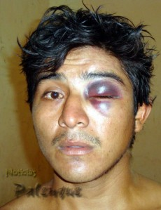 También salió golpeado el machetero.
