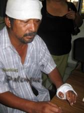 El lesionado denunció a su agresor.